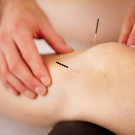 acupuncture-massage-winnipeg